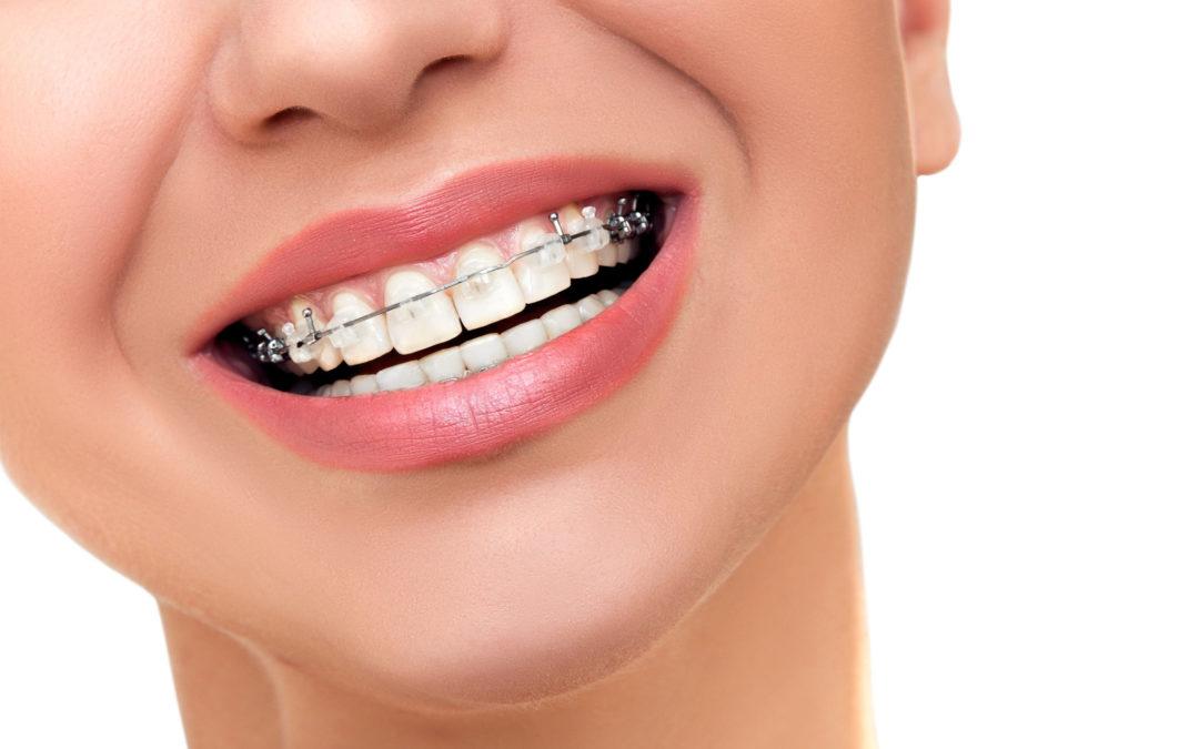 Diferencias entre ortodoncia tradicional y método invisible